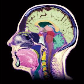 Overprikkeld brein